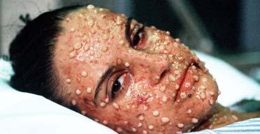 smallpox10.jpg