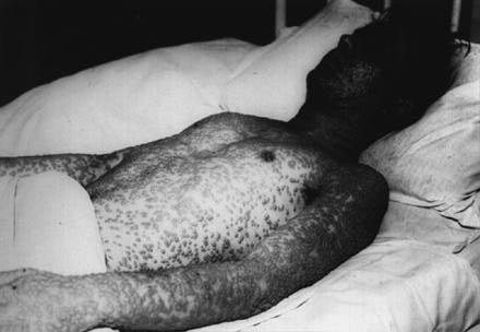 smallpox7.jpg