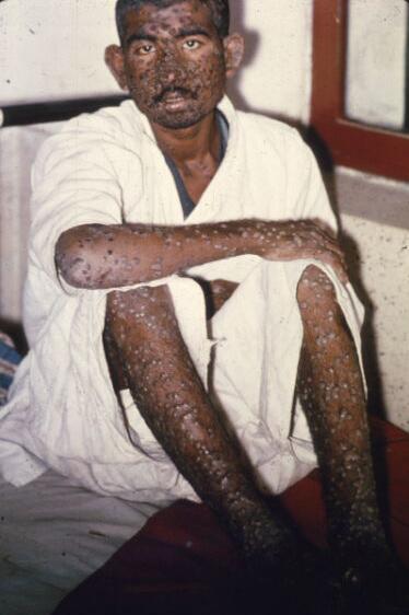 smallpox8.jpg