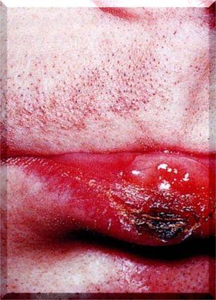 syphilis-4.jpg