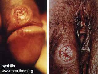 syphilis4.jpg